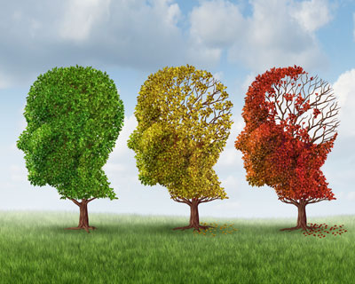 Alzheimer's and Dementia Stages