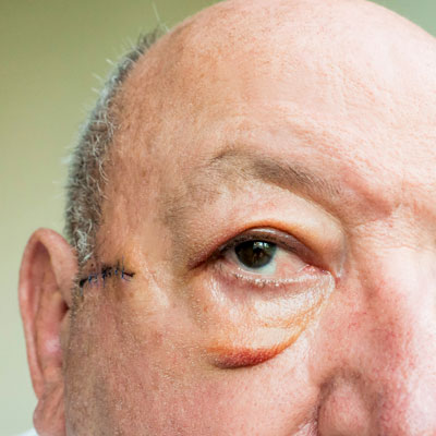 Cosmetic Surgery in Elder Years Can Improve Overall Health