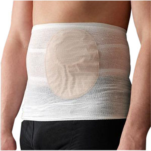 Tytex Stomasafe Classic Ostomy Support Belt